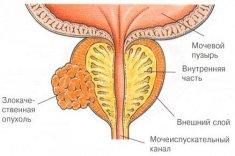 Умеренно дифференцированный рак предстательной железы- лечение