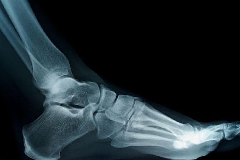 Рак кости как лечить 37