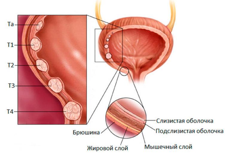 Как проверить мочевой пузырь