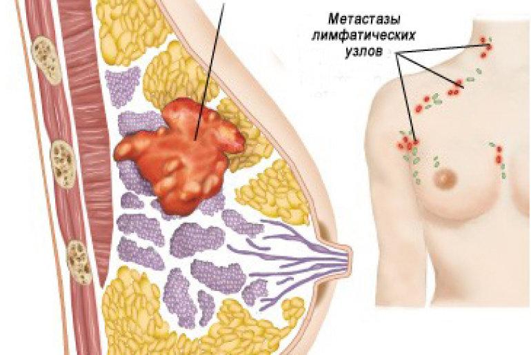 есть ли боли при раке молочной железы расход электроэнергии