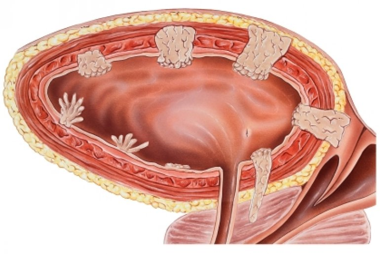 опухоль мочевого пузыря норма холестерина в крови