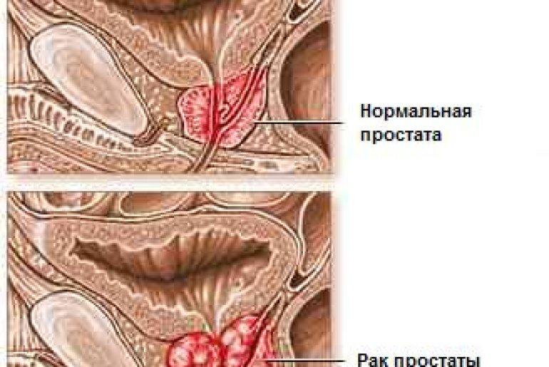 Рак аденомы простаты и его первые симптомы