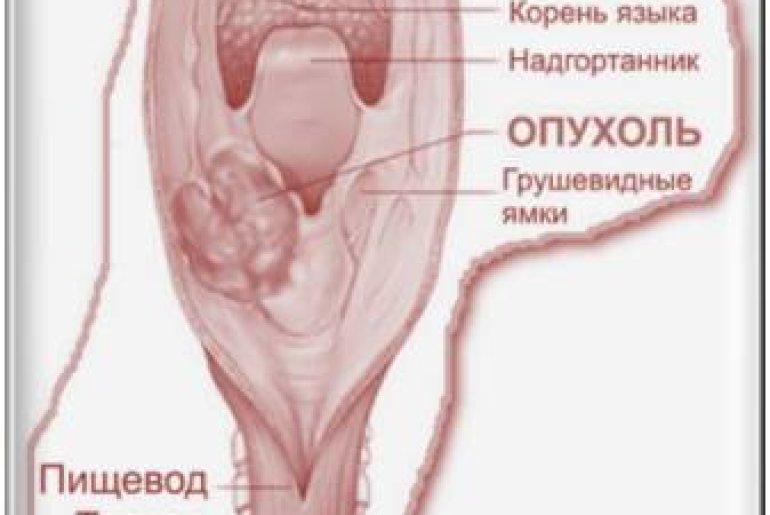 Крапивница на ногах у ребенка лечение