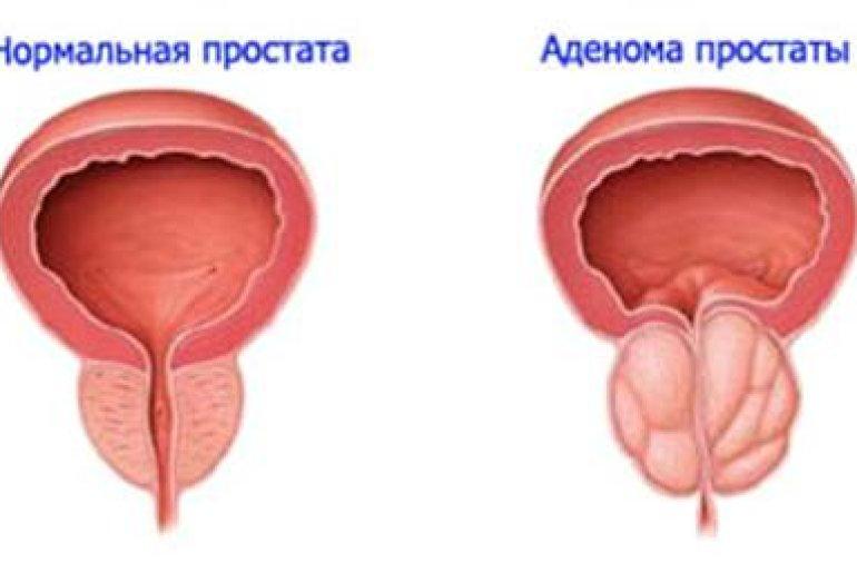 Единичные гиперэхогенные включения в предстательной железе