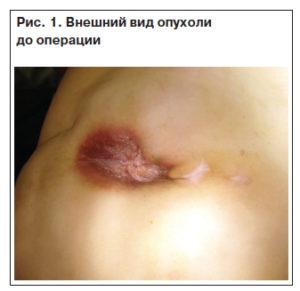 Внешний вид опухоли