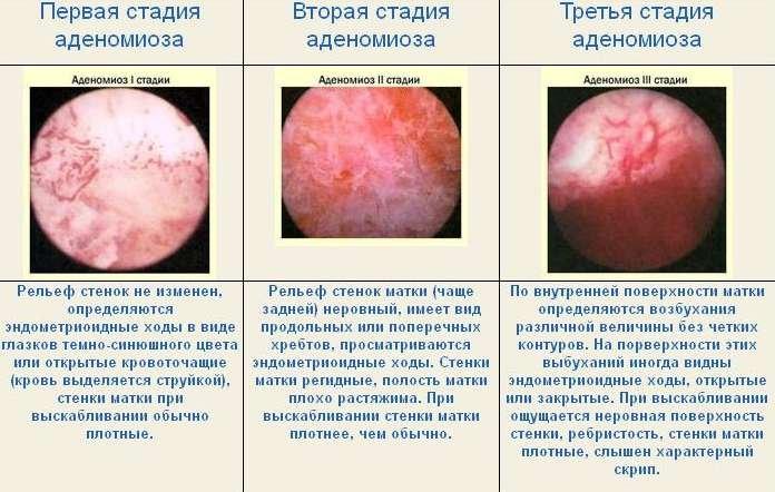 Аденомиоз шейки матки причины возникновения Рак - лечение и профилактика