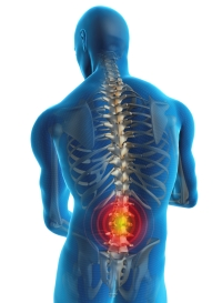 Травмы - причины возникновения рака позвоночника