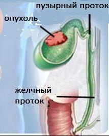 Опухоль желчного пузыря