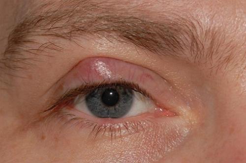 воспаление верхнего века глаза при аллергии