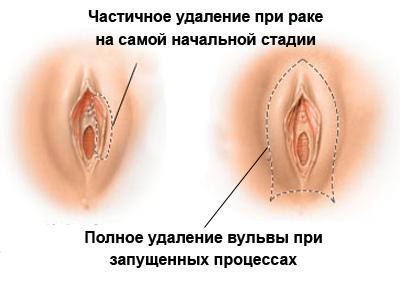 libido-seksualnoe-vlechenie