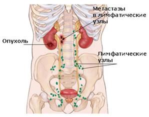 metastazyi