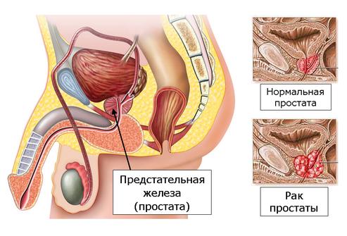 Сколько курсов лечения хронического простатита