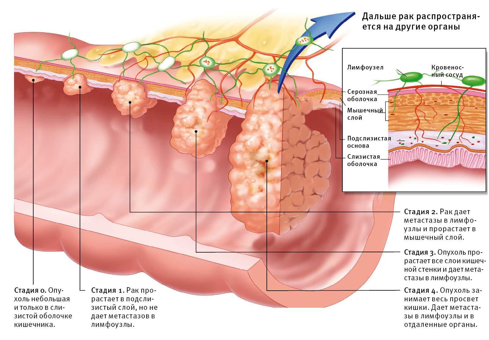 Что делать при опухоли в прямой кишке