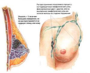 Распространение метастазов рака молочной железы