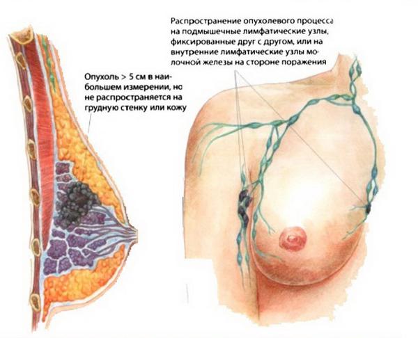 Стадии, симптомы, признаки и лечение рака молочной железы.