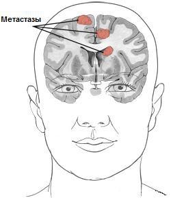 Рак головного мозга. 4-я стадия.
