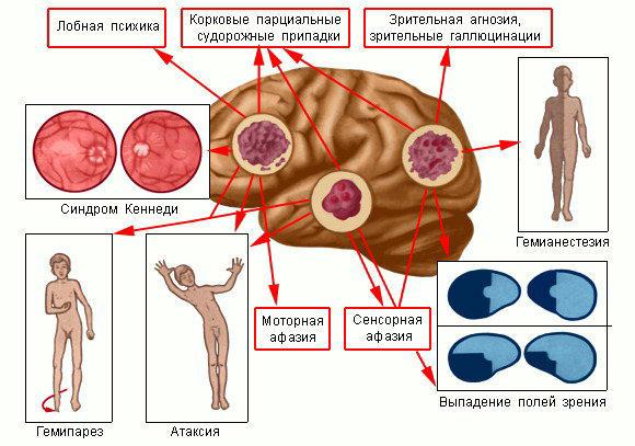 стадии головного мозга