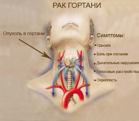 от горла выздоровления Рецепт рака