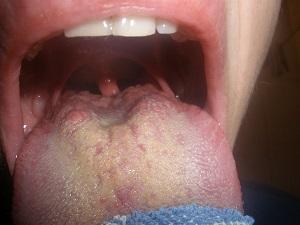 Болезнь горла признак заболевания какого внутреннего органа