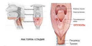 Рак гортани первая стадия