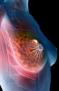 Исследование и диагностика рака ПеджетаИсследование и диагностика рака Педжета
