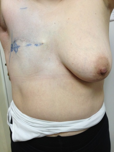 Как увеличить грудь до 2 размера бесплатно