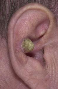 Плоскоклеточный рак уха