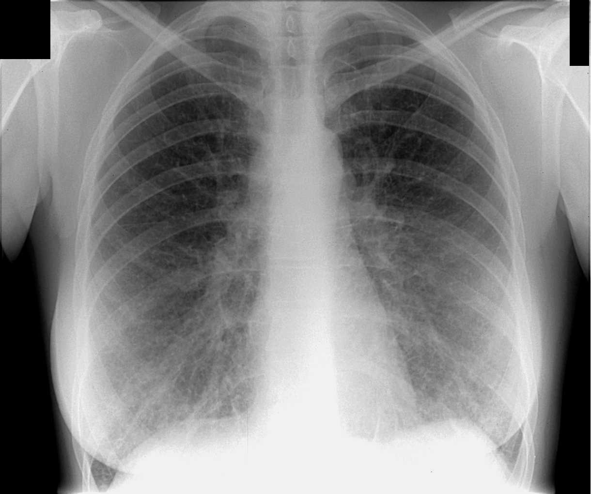 фото лёгких флюорография