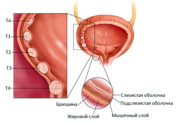 Биопсия мочевого пузыря у женщин