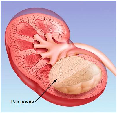 Лечение опухоли почки народными средствами | Рак - лечение и ...