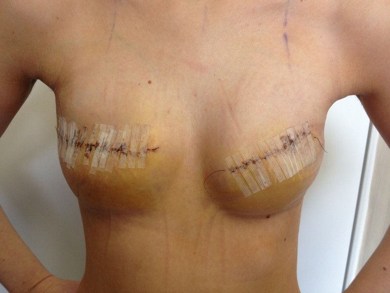 гематома молочной железы лечение