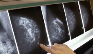 Снимок рака груди