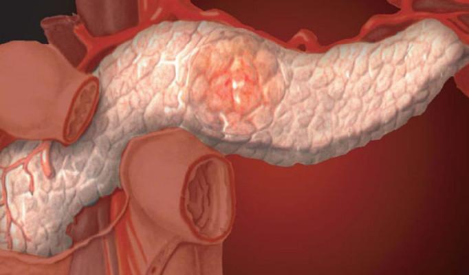 Аденокарцинома поджелудочной железы | Рак - лечение и профилактика
