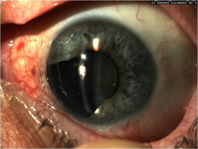Меланома глаза | Рак - лечение и профилактика