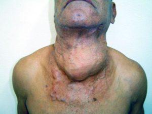 Рак четвертой степени и метастазы