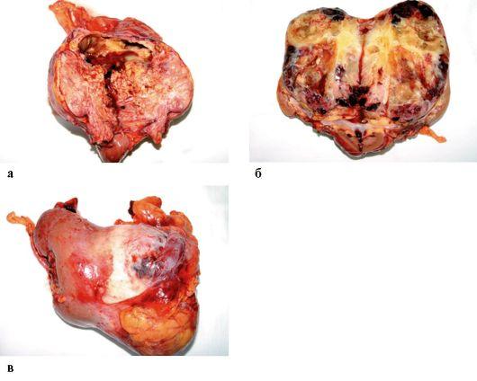 Светлоклеточный рак почки | Рак - лечение и профилактика