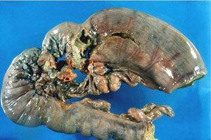 Низкодифференцированная карцинома желудка