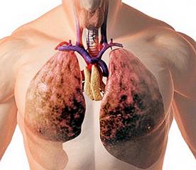 Кардиогенный отек легких > Клинические протоколы