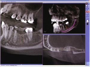 Рентген опухоли челюсти