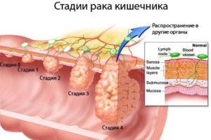 Классификация рака кишечника