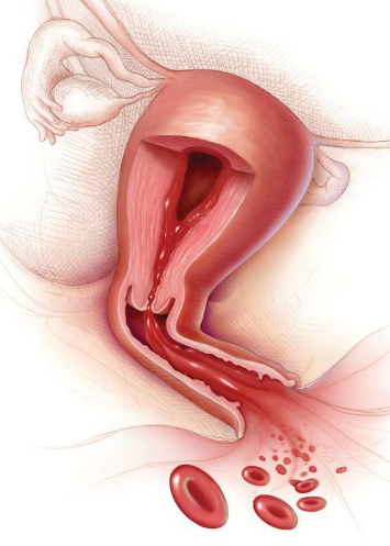 Uterine bleeding