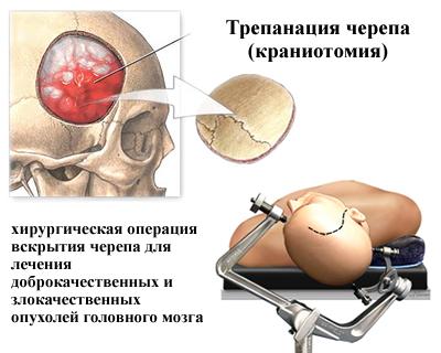 криз сосудов головного мозга лечение