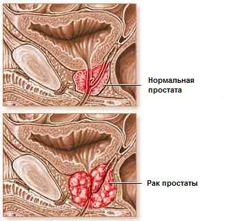 Болиголов от рака желудка 4 стадии с метастазами — Сам себе Доктор