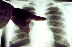 Симптомы при метастазах рака легких