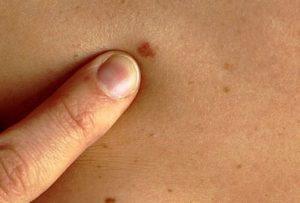 Рак кожи симптомы